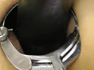Anal Speculum 124 Redtube Free Anal Porn Videos Amp Sex Movies