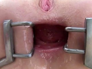 Anna De Ville Got Asshole Gaped Wide With Speculum And Fucked